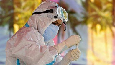Photo of منٹوں میں کورونا وائرس کا نتیجہ بتانے والی ٹیسٹ کٹ